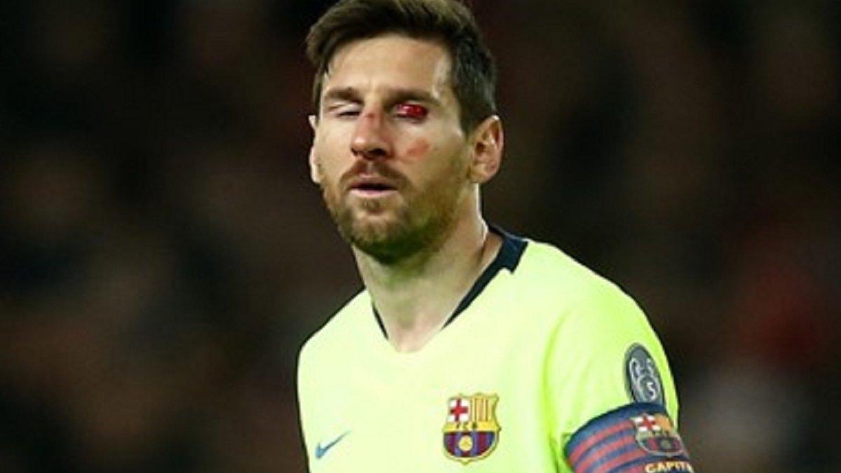 Манчестер Юнайтед – Барселона: Смоллінг розбив Мессі обличчя – криваві фото
