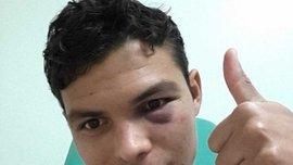 Тьяго Силва показал свой синяк от Бербатова (ФОТО)