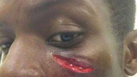 Игрок КПР получил ужасную травму лица (ФОТО)