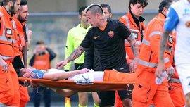 Маттьєлло успішно прооперували після відкритого перелому ноги - може пропустити рік