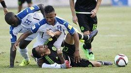 Гравцю Гондурасу зламали ногу в грі з Мексикою у відборі до ЧС-2018 (ВІДЕО)