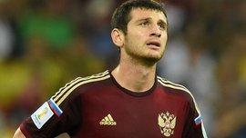 Лідер збірної Росії зламав ногу і не зіграє на Євро-2016
