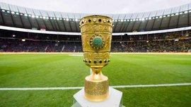 Баварія – Борусія Д: матч 1/8 фіналу Кубка Німеччини відбудеться 20 грудня