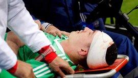 Лунев получил травму головы в матче Россия – Испания, а Глушаков занял место в воротах