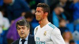 Роналду появился на тренировку Реала с огромной гематомой под глазом и пропустит матч против Леганес