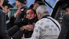 В Болгарии во время матча ЦСКА – Левски пострадала женщина-полицейский