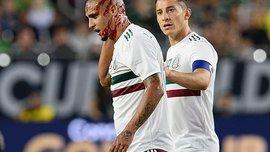 Золотий кубок КОНКАКАФ-2019: мексиканець Луїс Родрігес зазнав моторошного пошкодження, отримавши коліном у потилицю