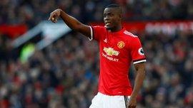 Байли не поможет Манчестер Юнайтед на старте сезона