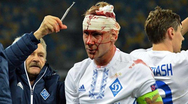 Динамо – Янг Бойз: фото кривавої травми Віди