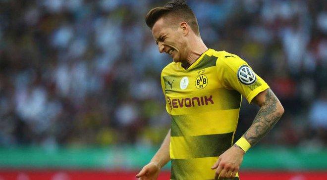 Бавария – Боруссия Д: Ройс пропустит матч