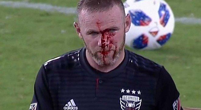 Руні розбили голову до крові під час матчу МЛС